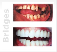 Miami Dental - Bridges