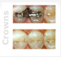 Miami Dental - Crowns