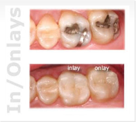 Miami Dental - Inlays